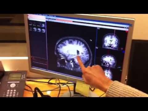 filmpje hersenen