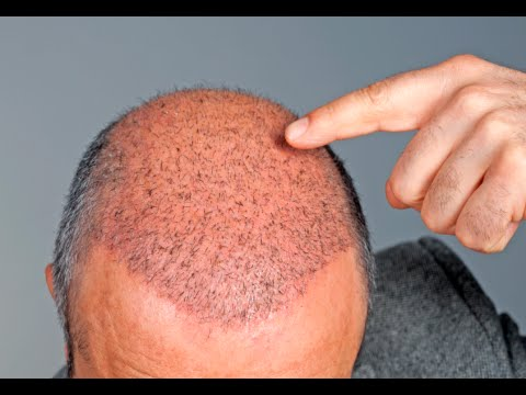 How to Make Hair Grow in Bald Spots -  Hair Growth Tips