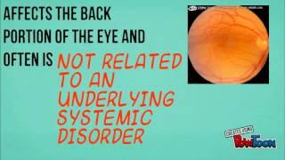 scleritis