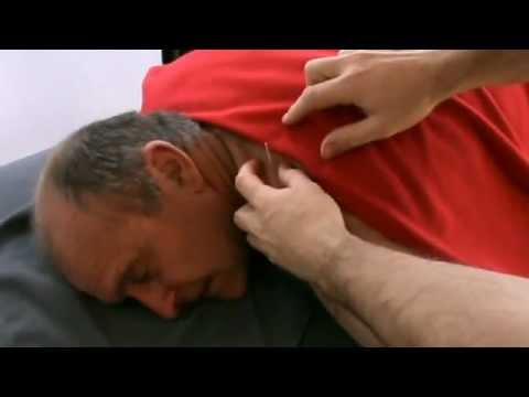 Acupuncture Treatment from Wellacupuncture