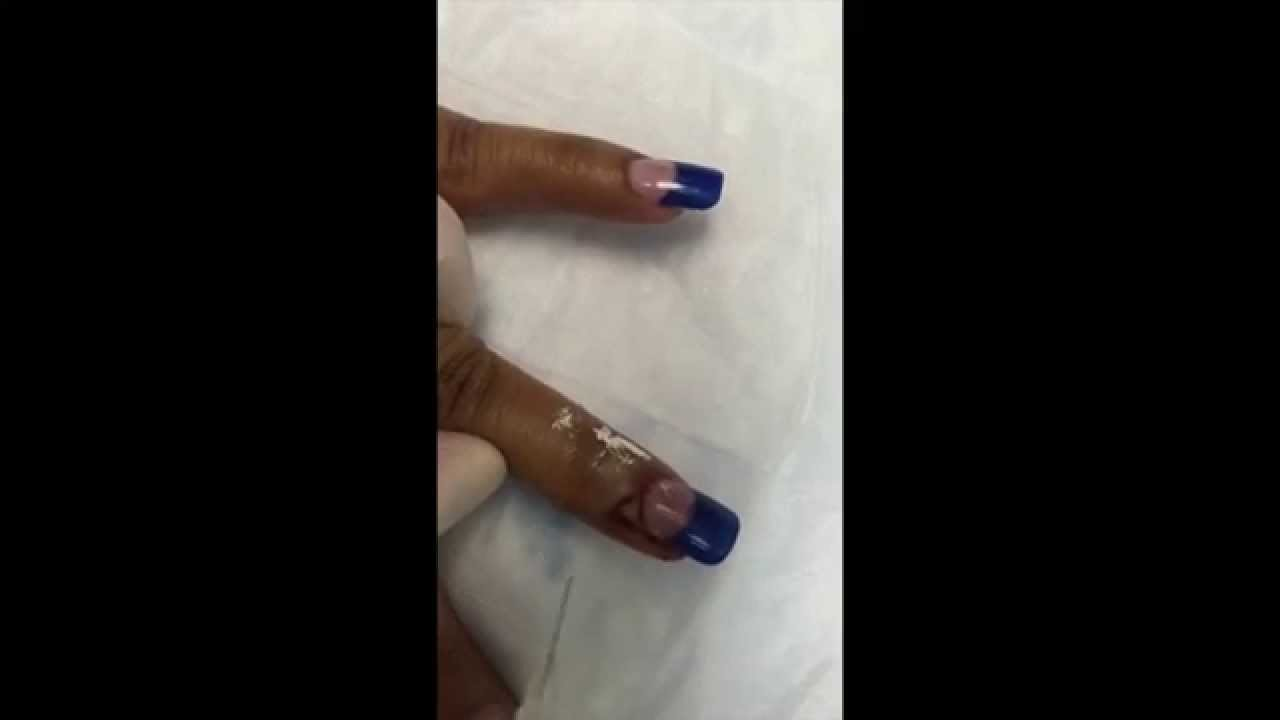 Painful Finger! Nail Partially Ripped Off During Easter Escapade ...