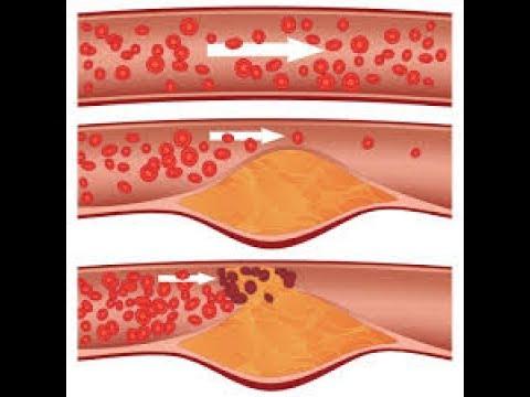 Как лечить атеросклероз сосудов