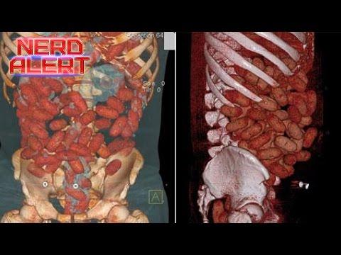 The Inside of a Drug Mule