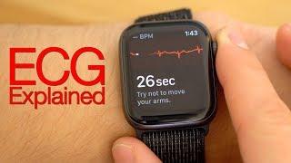 testing-ecg-on-apple-watch-series-4-how-it-works