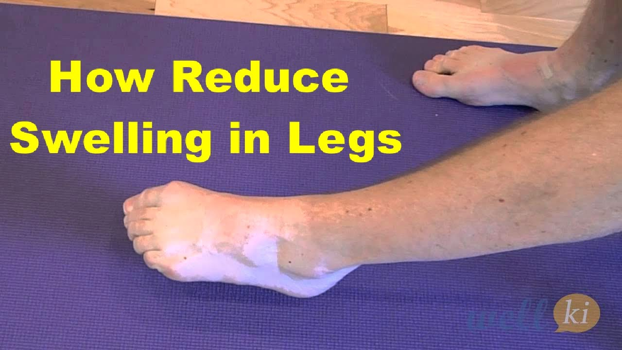 How to remove swelling 95