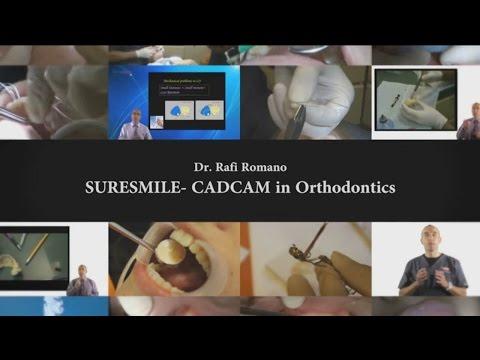 Dr. Rafi Romano - Suresmile CAD/CAM in orthodontics