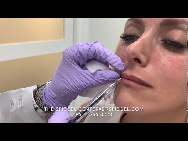 Lip Injections- For Those Who Want A More Natural Result