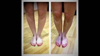 Силиконовые накладки для кривых ног