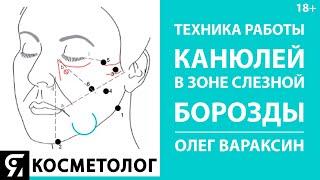 Техника работы канюлей в зоне слезной борозды Олег Вараксин врач косметолог, дерматовенеролог