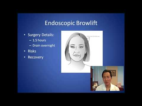 How Can I Lift My Droopy Eyebrows - Browlift Consultation - Dr. Anthony Youn