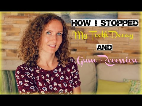 How I Stopped My Tooth Decay and Gum Recession