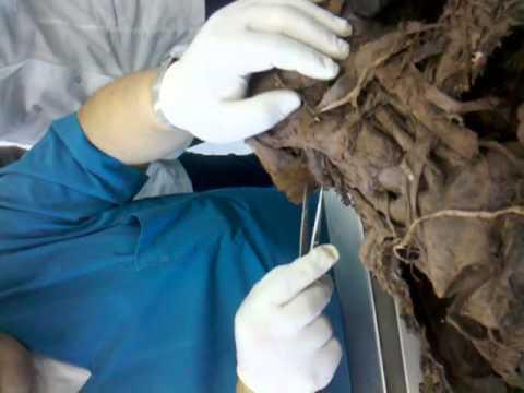 Cadaver para estudio de anatomia humana. video 1.3gp - YouTube
