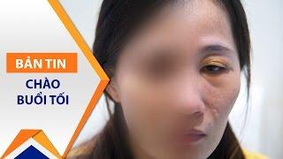 Biến chứng hãi hùng vì tiêm Silicon vào mắt | VTC