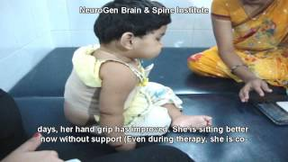 therapy   treatment for Joubert Syndrome by dr alok sharma, mumbai, india