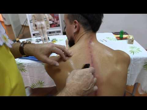 МВ от ДКЦМ: 15.12 Древнекитайский скребковый массаж гуаша (ч.4)