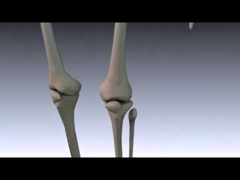 3D Printed Scaffold for Bone Repair
