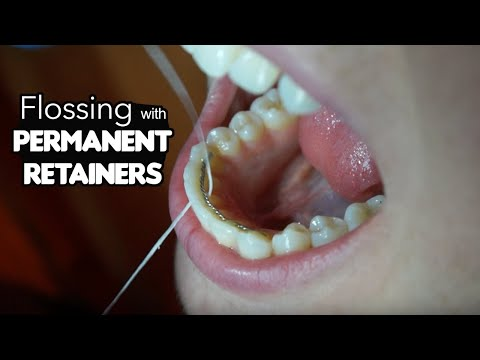 Flossing Tricks for Permanent Retainers