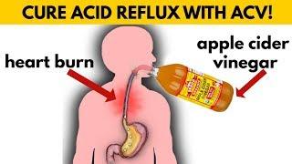 🚫STOP Taking ANTACIDS & Try APPLE CIDER VINEGAR If You Have ACID REFLUX, GERD or HEART BURN
