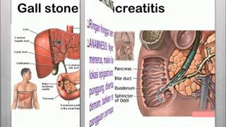 Acute Pancreatitis - Overview (signs and symptoms, pathophysiology, investigations, treatment).