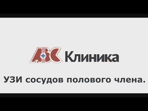 УЗИ сосудов полового члена.