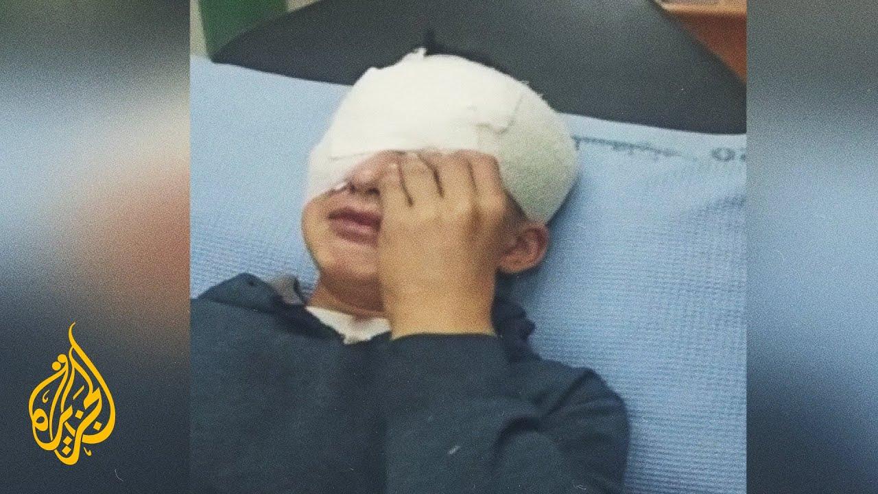 شاهد| إصابة طفل فلسطيني في عينه برصاص الجيش الإسرائيلي  - نشر قبل 5 ساعة