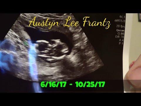 I'm No Longer Pregnant | Storytime | 10-30-17