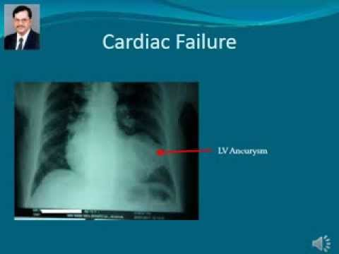 Heart failure case study examples