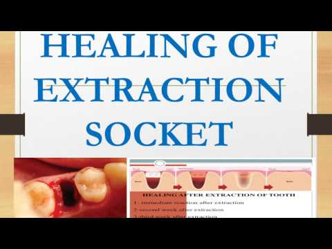Healing Of Extraction Socket I Oral Pathology I Dental Guide I Dr Bimal Chand I Youtube