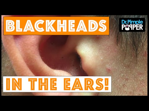 Blackheads in the Ears! Extractions by DrPimplePopper