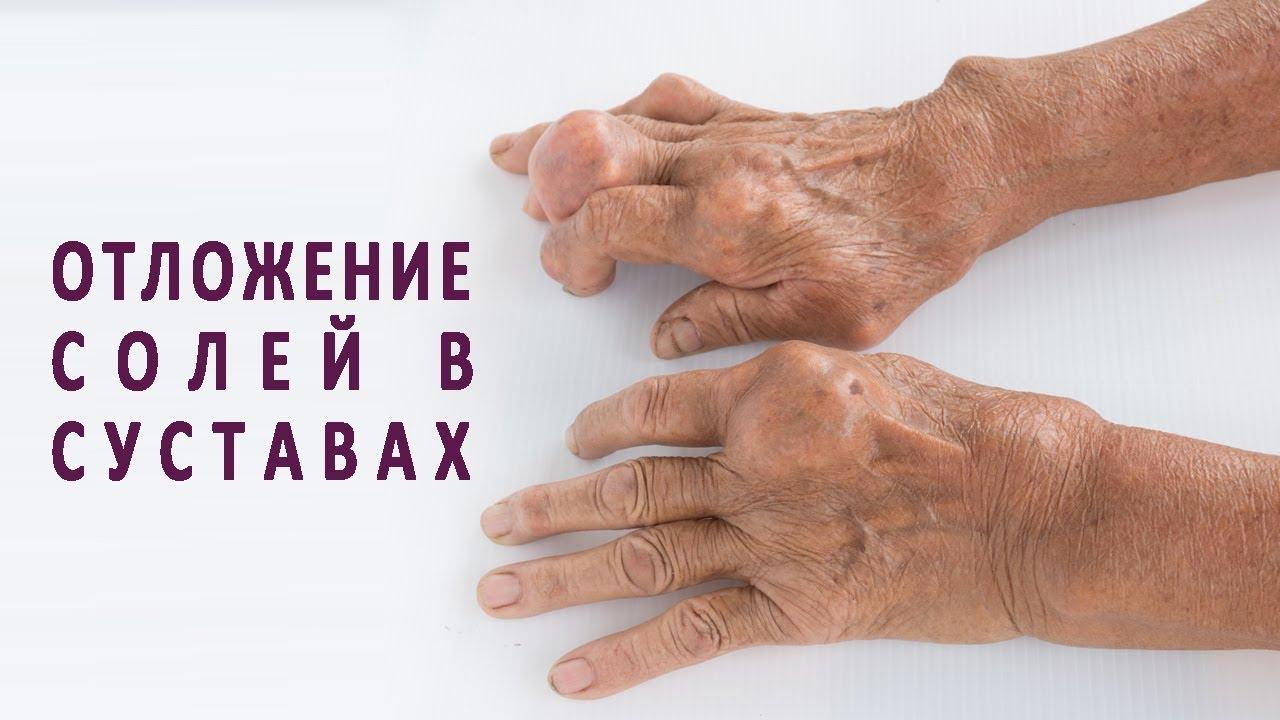 укладка рентген височно-нижнечелюстного сустава