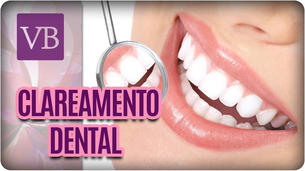 Mitos E Verdades Do Clareamento Dental Voce Bonita 25 01 17