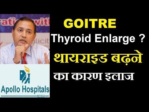 Thyroid Enlargement Nodule Multinodular Goitre Cause Treatment Delhi 9899180390 Cancer Risk