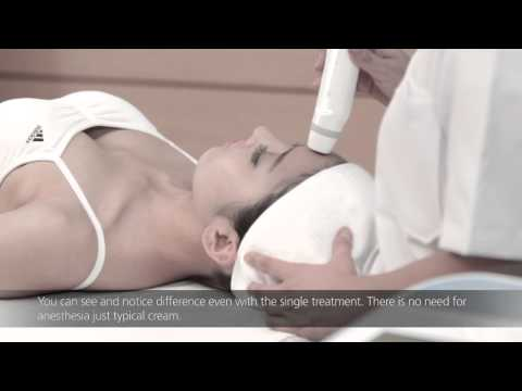 Liftron Thermatrix[Non Needle Fractional RF System]_Daeyang Medical