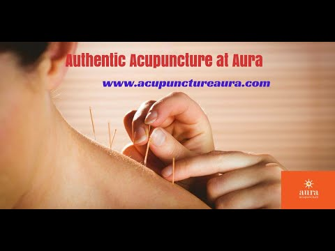 acupuncture-ernakulam---acupuncture-treatments-in-ernakulam-acupuncture-kochi-acupuncture-in-kochi