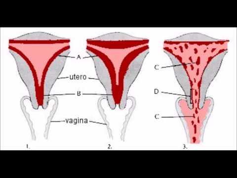 como son los coágulos de sangre en la menstruacion