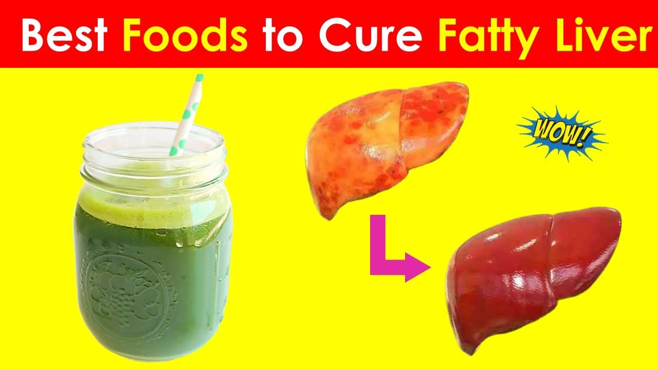 9 Must Have Foods To Eat & Avoid During Fatty Liver - Fatty Liver Diet