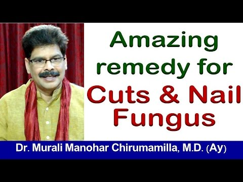 Excellent home remedy for Cuts, Wounds and Fungal infections of nails by Dr. Murali Manohar