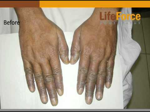 Psoriasis On Palms & Fingers Treated At Life Force