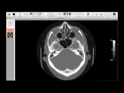 Christopher Hess, MD, PhD, Neuroimaging Part 2: Fundamentals of Image Interpretation