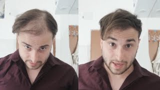 Thick Looking Hair In Seconds - No More Thinning Hair - Transformation 2019