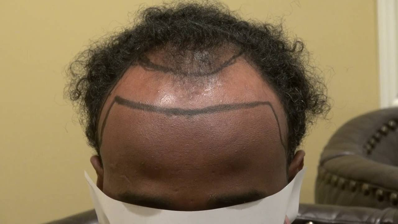 Black Man Hair Transplant Lower Hair Line For Balding