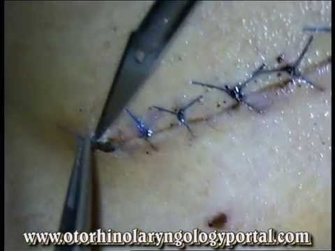 Removal of Surgical Suture or STO (Suture-To-Off).