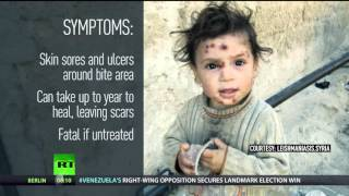 Outbreak of flesh-eating skin disease spreading across Syria (GRAPHIC)