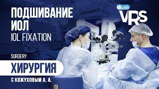 Подшивание ИОЛ. Хирургия с Кожуховым А. А. | IOL Fixation.