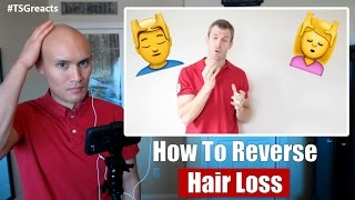 How to Reverse Hair Loss: 6 Secrets for Reversing Hair Loss || Reaction Video