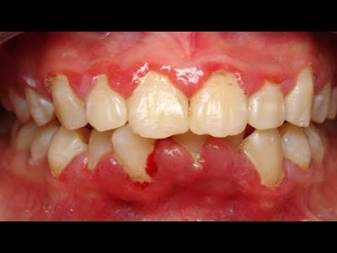 3-easy-ways-to-get-rid-of-gum-swelling-|-how-to-get-rid-of-swollen-gums-|-natural-remedies