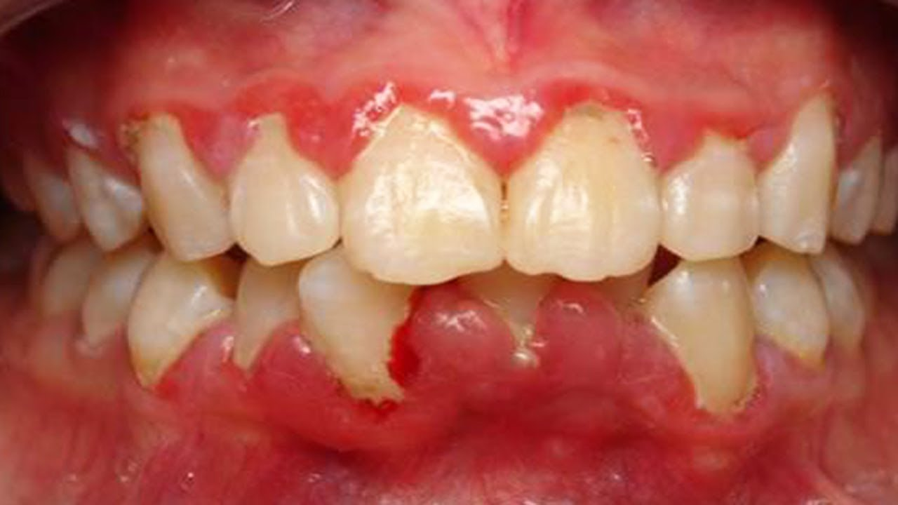 Gums hurt - what to do at home Causes and treatment of gum disease 100