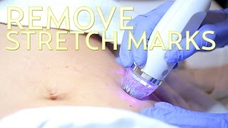 How to Get Rid of Stretch Marks with EndyMed   The SASS with Susan and Sharzad