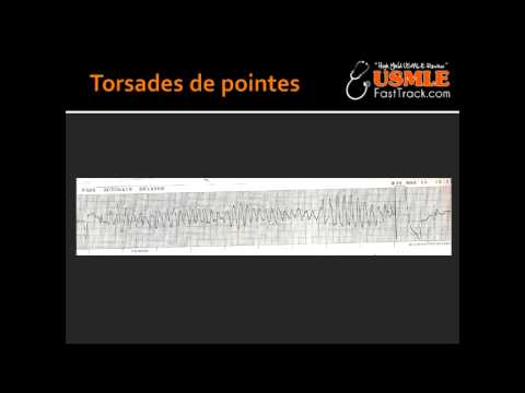 Torsades de pointes & Jarvell and Lange-Nielsen Syndrome
