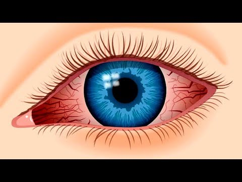 Do This To Get Instant Relief From Eye Pain | Home Remedies